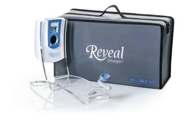 Reveal便携式面部皮肤分析仪